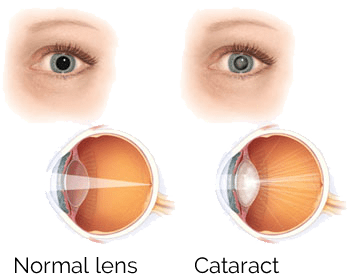 What Cataracts Look Like